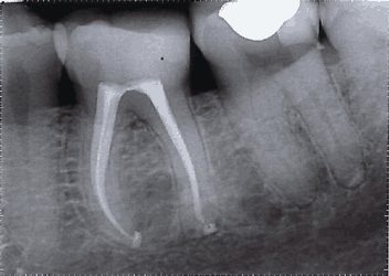 Root Canal Xray Mark Feller Stratford upon Avon
