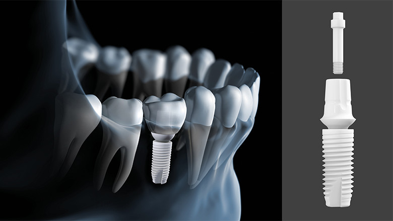 Straumann Dental Implants supplied by Straumann